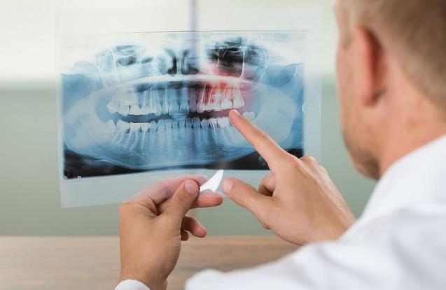Radiología e imagenología oral y maxilofacial/Dentista